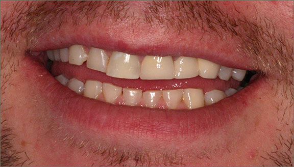 After cosmetic treatment by Mick Family Dental Care