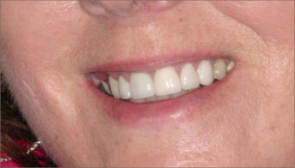 Teeth whitening treatment by Columbus, OH cosmetic dentist, Dr. Mick