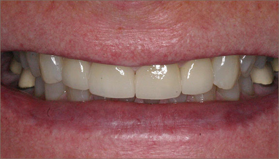 Chipped tooth repair in Columbus, OH, OH