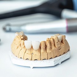 Model of beautiful dental implants in Reynoldsburg
