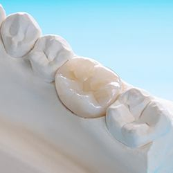 Closeup of beautiful, custom-made dental implant