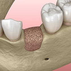 diagram of bone grafting in Reynoldsburg
