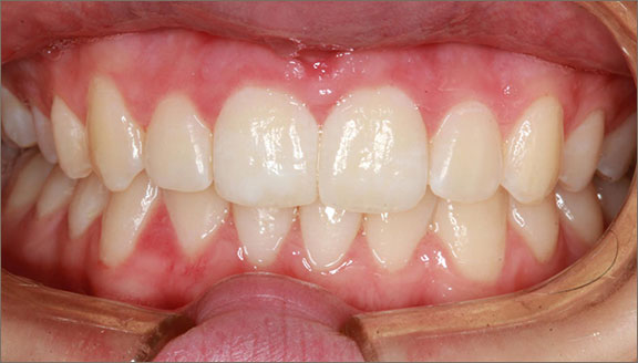 After Invisalign treatment by Mick Family Dental Care