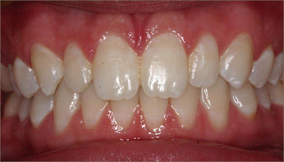 Orthodontic treatment in Columbus, OH, OH