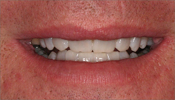 Teeth whitening treatments in Columbus, OH