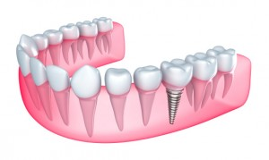 Columbus dentist offers dental implants to qualified candidates.