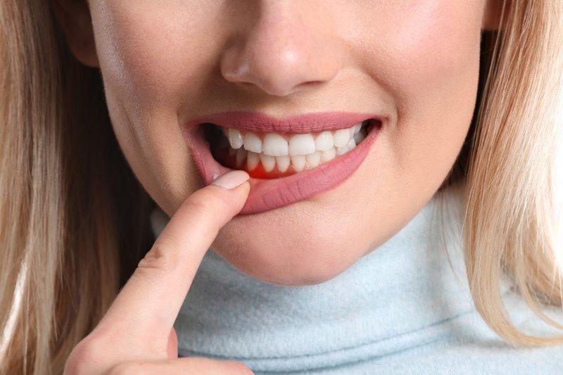 woman suffering from gum disease in Reynoldsburg